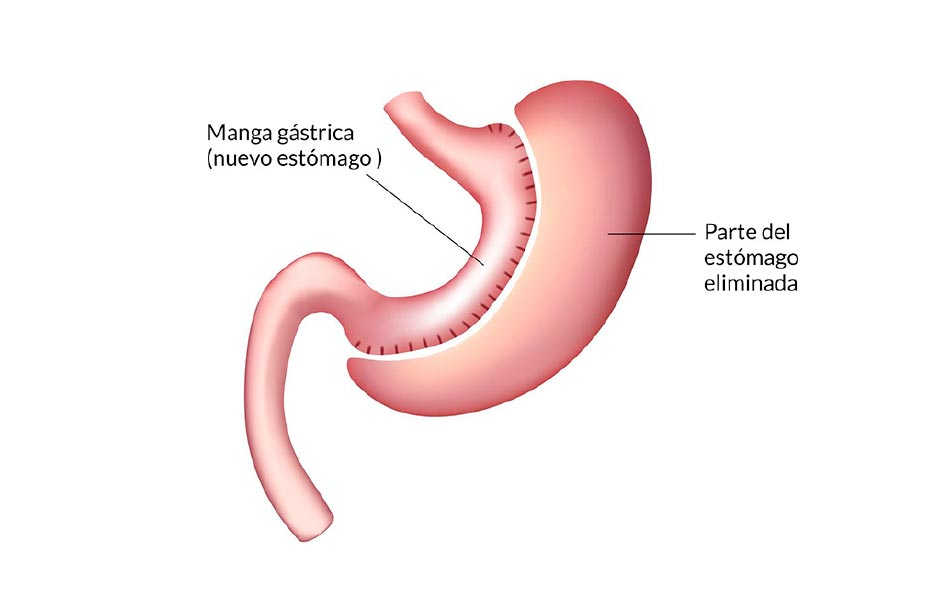 sleeve-tubo-gastrico-mejor-cirujano-clinica